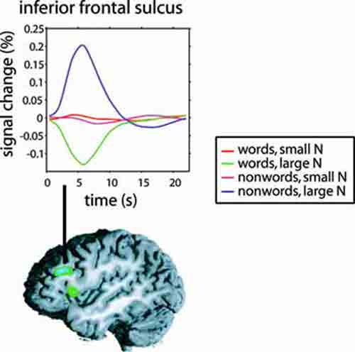 Negative correlation between right prefrontal activity ...