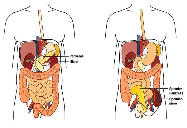 Inselzell-Transplantation: Eine neue Bauchspeicheldrüse für Zuckerkranke | diabetes.moglebaum.com